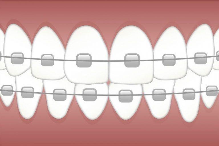 Apparecchio per i denti: vantaggi e svantaggi delle varie tipologie